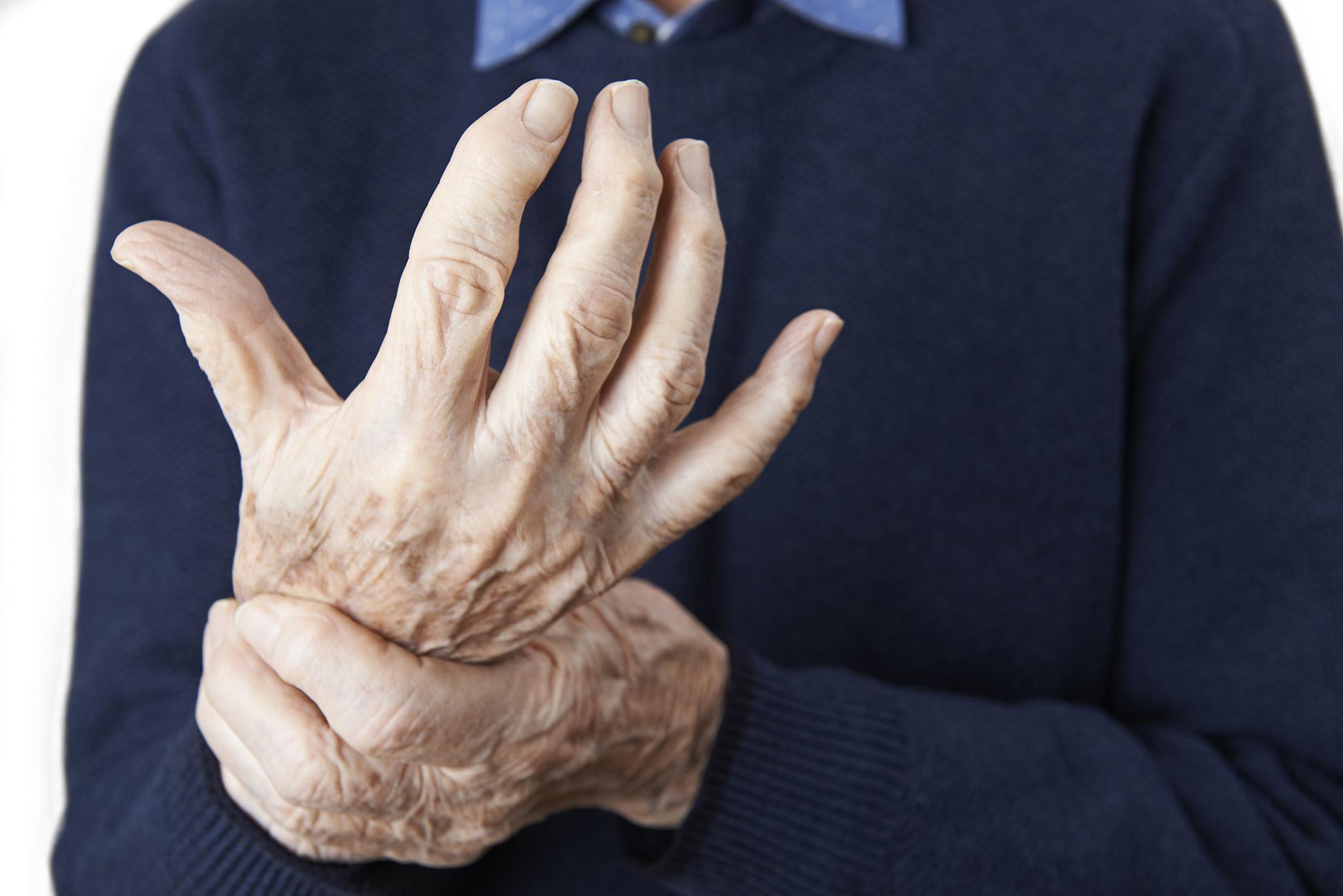 Um quinto da população com propensão para desenvolver artrite reumatóide