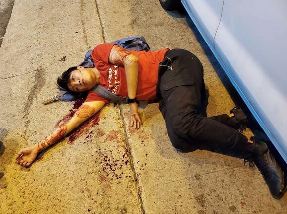 Hong Kong   Amnistia Internacional pede investigação ao ataque contra activista