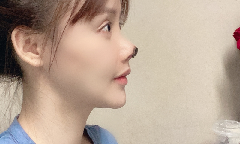 Plásticas | Actriz chinesa sofre de necrose nasal
