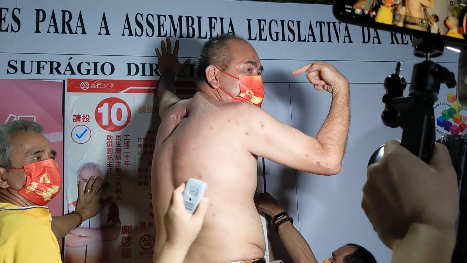 Debate | Lee Sio Kuan impedido de entrar em estúdio da TDM